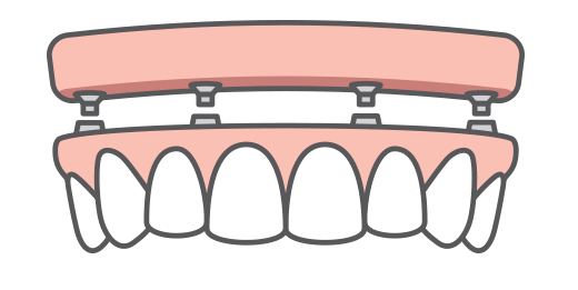 An illustration of All-On-4 dental implants